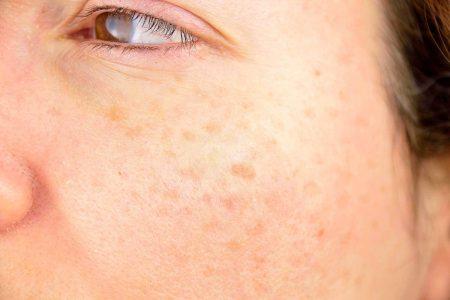 پیشگیری از پیری پوست صورت